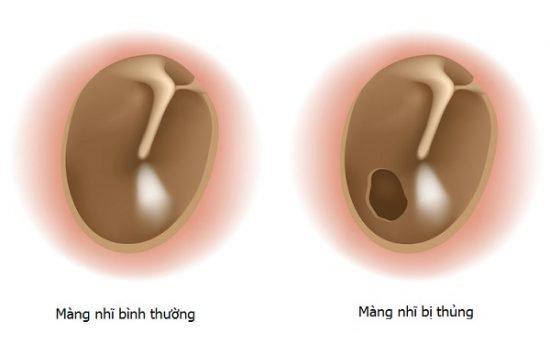 Thủng màng nhĩ là gì? Nguyên nhân và cách điều trị nhanh, chuẩn xác nhất